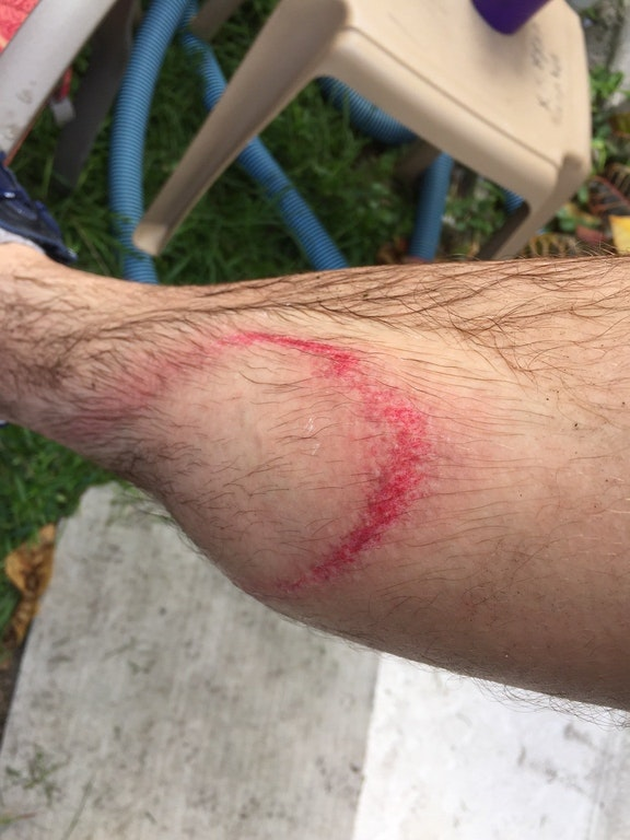 Reddit user's pressure washer injury